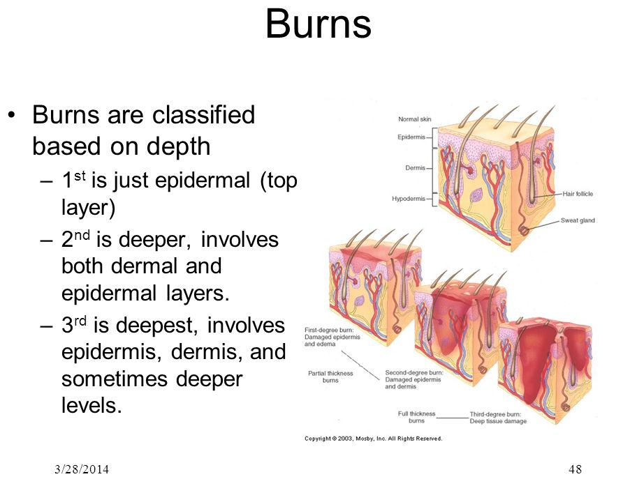 3/28/201448 Burns Burns are classified based on depth –1 st is just epidermal (top layer) –2 nd is deeper, involves both dermal and epidermal layers.