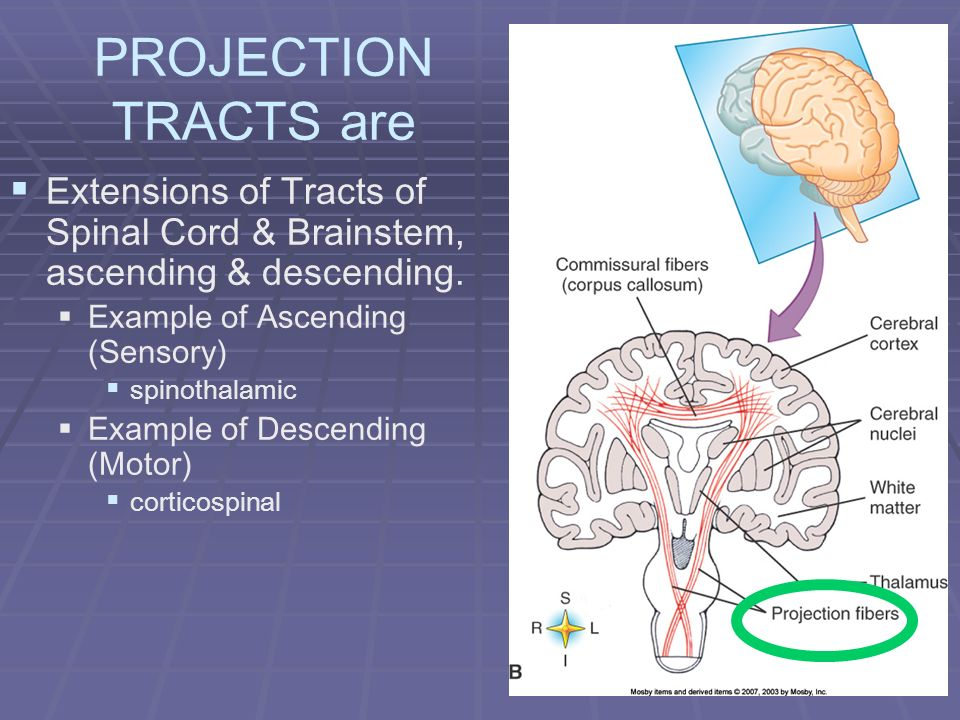 PROJECTION TRACTS are Extensions of Tracts of Spinal Cord & Brainstem, ascending & descending. Example of Ascending (Sensory) spinothalamic Example of