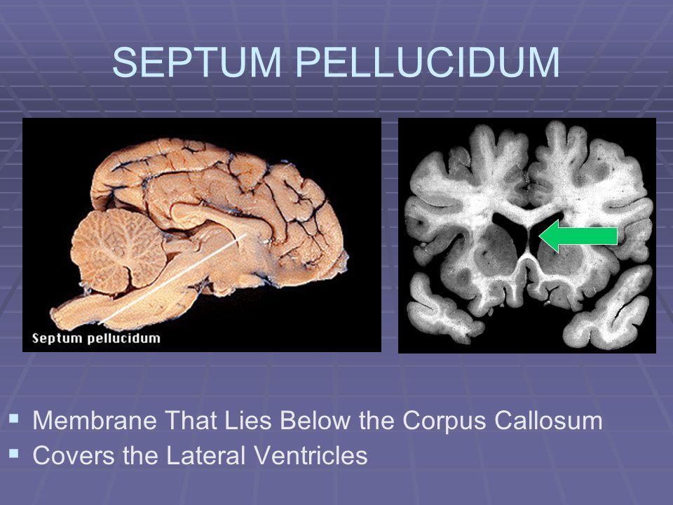 SEPTUM PELLUCIDUM Membrane That Lies Below the Corpus Callosum Covers the Lateral Ventricles