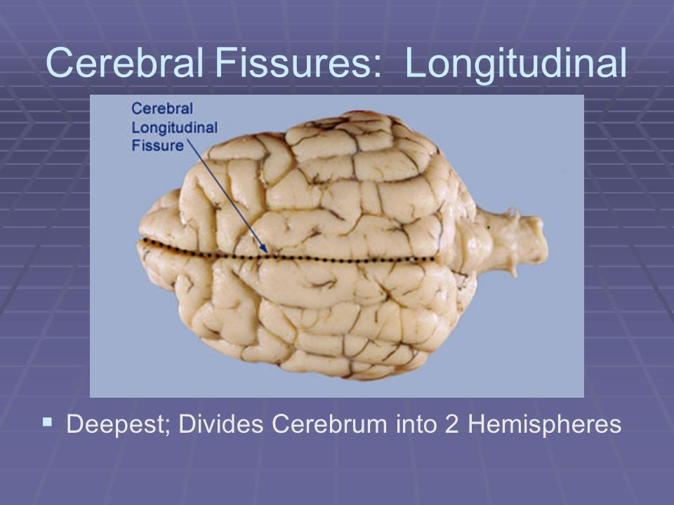 Cerebral Fissures: Central Sulcus