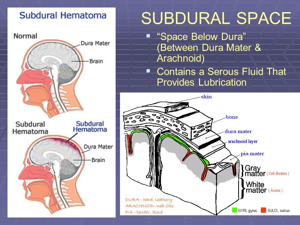 SUBDURAL SPACE Space Below Dura (Between Dura Mater & Arachnoid) Contains a Serous Fluid That Provides Lubrication