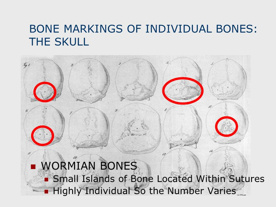 BONE MARKINGS OF INDIVIDUAL BONES: THE SKULL WORMIAN BONES Small Islands of Bone Located Within Sutures Highly Individual So the Number Varies