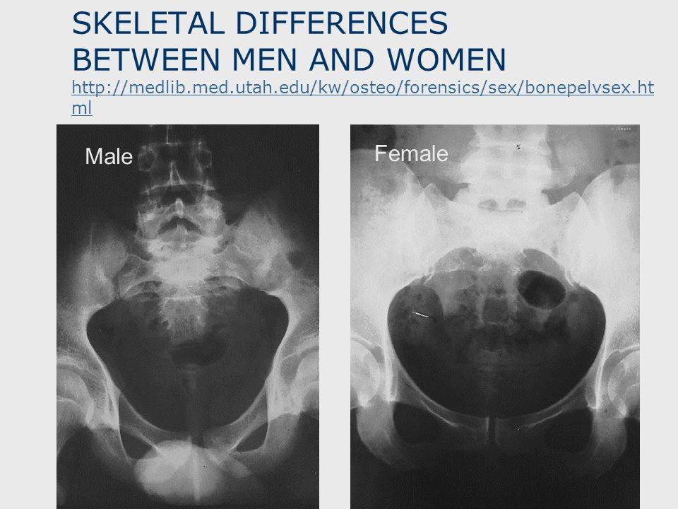 SKELETAL DIFFERENCES BETWEEN MEN AND WOMEN http://medlib.med.utah.edu/kw/osteo/forensics/sex/bonepelvsex.ht ml http://medlib.med.utah.edu/kw/osteo/for