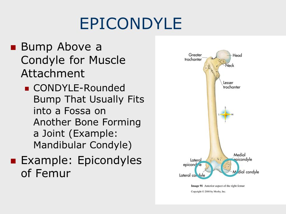 EPICONDYLE Bump Above a Condyle for Muscle Attachment CONDYLE-Rounded Bump That Usually Fits into a Fossa on Another Bone Forming a Joint (Example: Ma