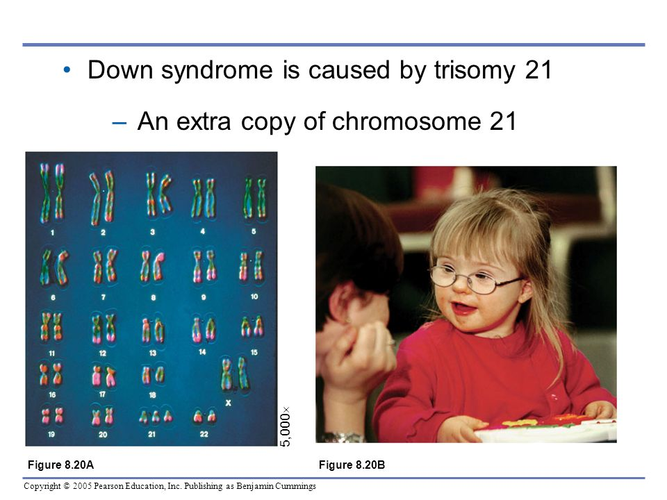 Copyright © 2005 Pearson Education, Inc. Publishing as Benjamin Cummings Down syndrome is caused by trisomy 21 –An extra copy of chromosome 21 5,000 F