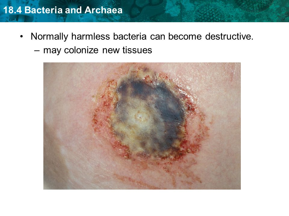 18.4 Bacteria and Archaea Normally harmless bacteria can become destructive. –may colonize new tissues