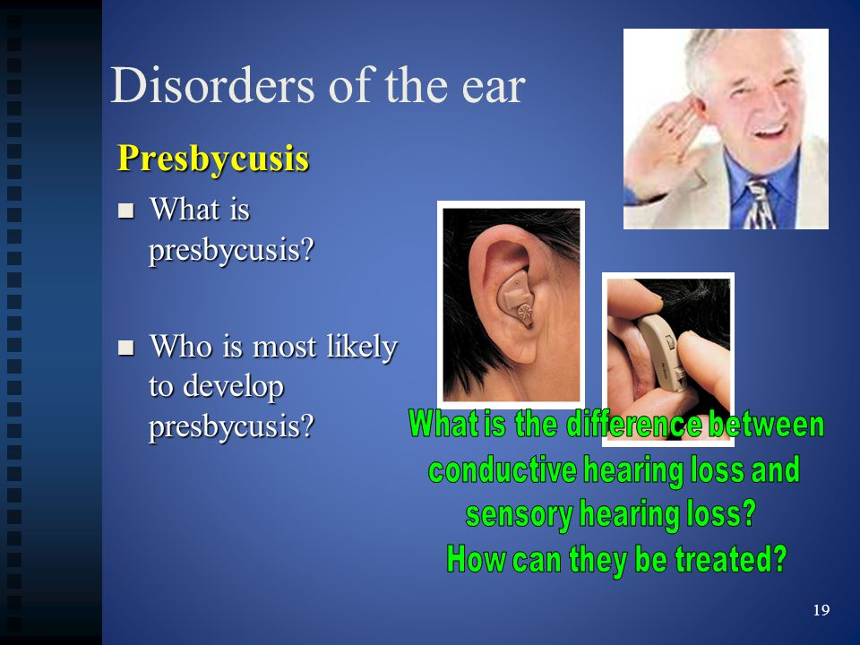 Disorders of the ear Presbycusis What is presbycusis? What is presbycusis? Who is most likely to develop presbycusis? Who is most likely to develop pr