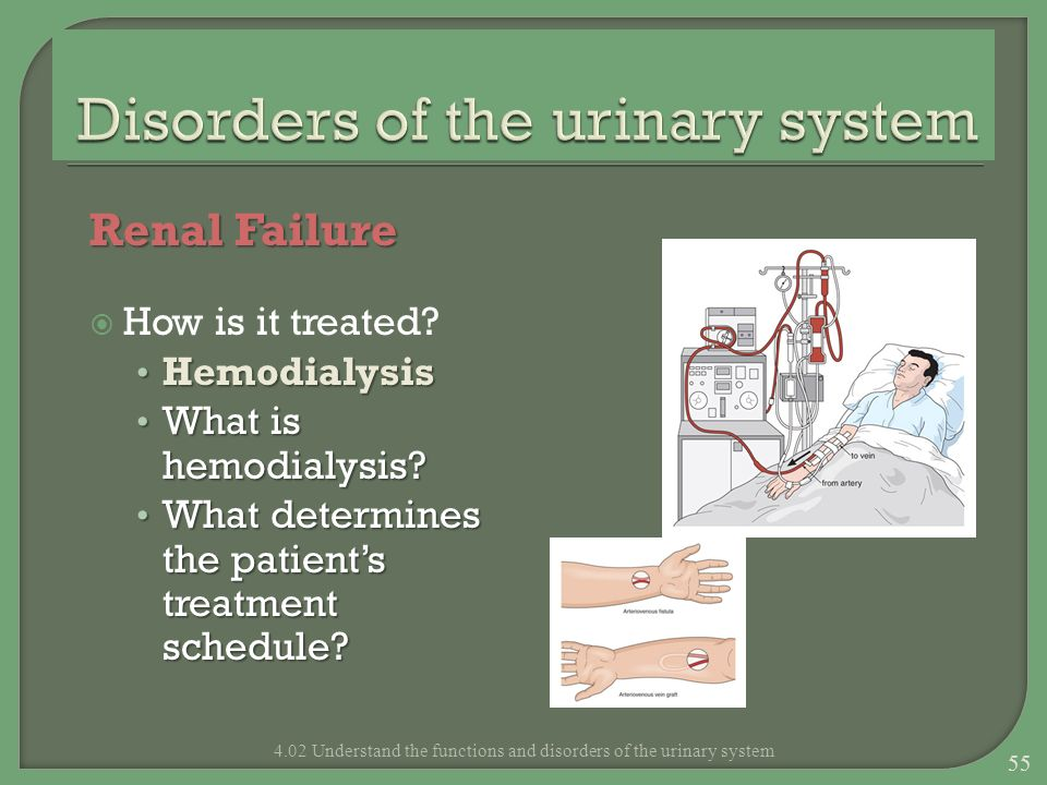 Renal Failure How is it treated? Hemodialysis Hemodialysis What is hemodialysis? What is hemodialysis? What determines the patients treatment schedule