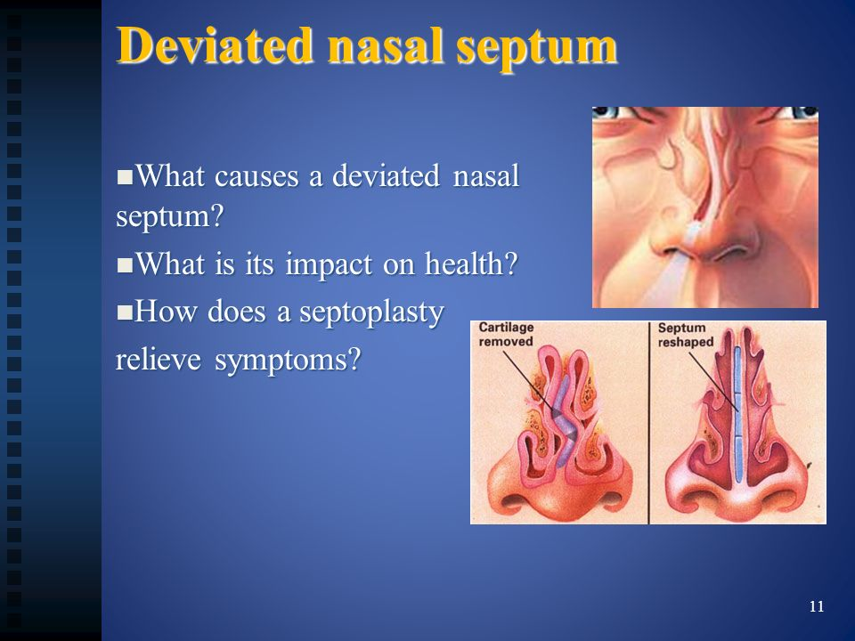 Deviated nasal septum What causes a deviated nasal septum? What causes a deviated nasal septum? What is its impact on health? What is its impact on he