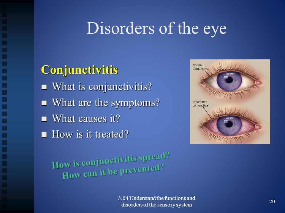 Disorders of the eye Conjunctivitis What is conjunctivitis.