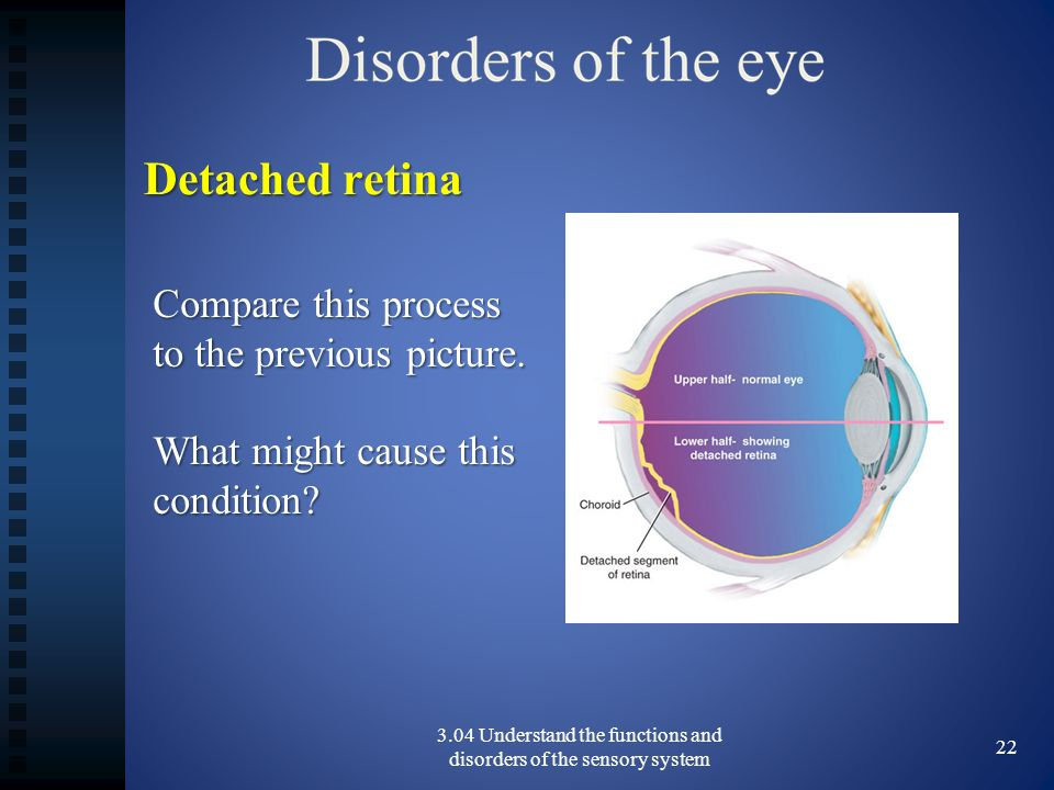 3.04 Understand the functions and disorders of the sensory system 22 Detached retina Compare this process to the previous picture.
