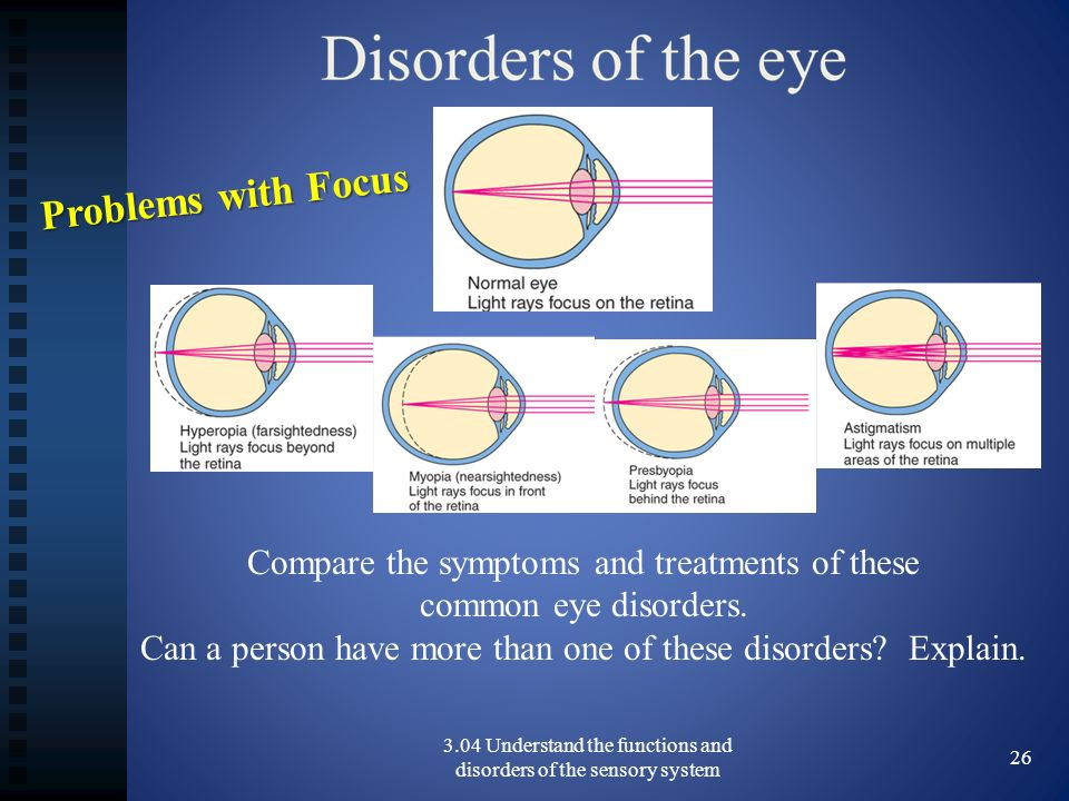 3.04 Understand the functions and disorders of the sensory system 26 Compare the symptoms and treatments of these common eye disorders.