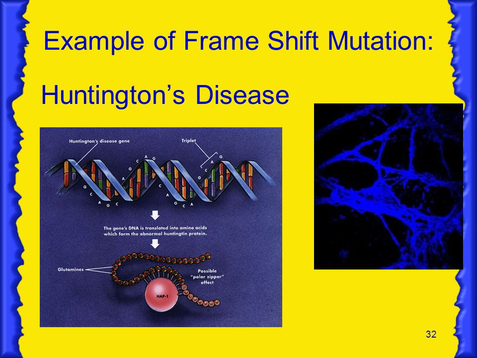 32 Example of Frame Shift Mutation: Huntingtons Disease