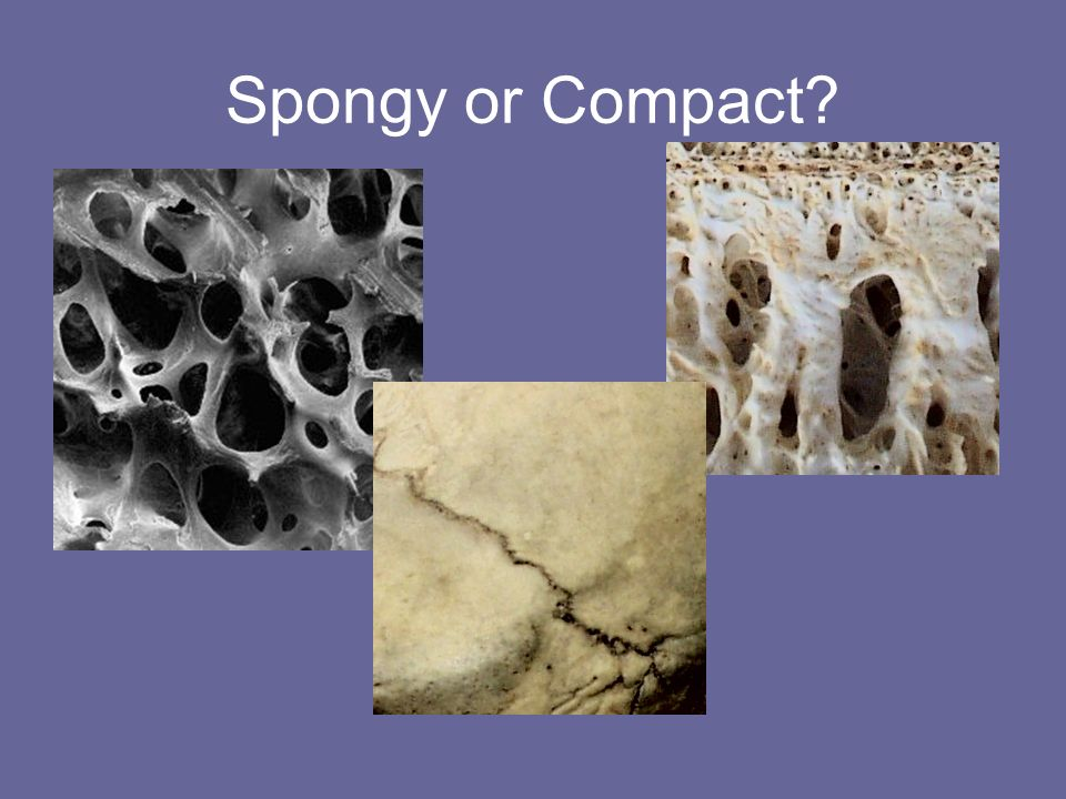 Spongy or Compact?