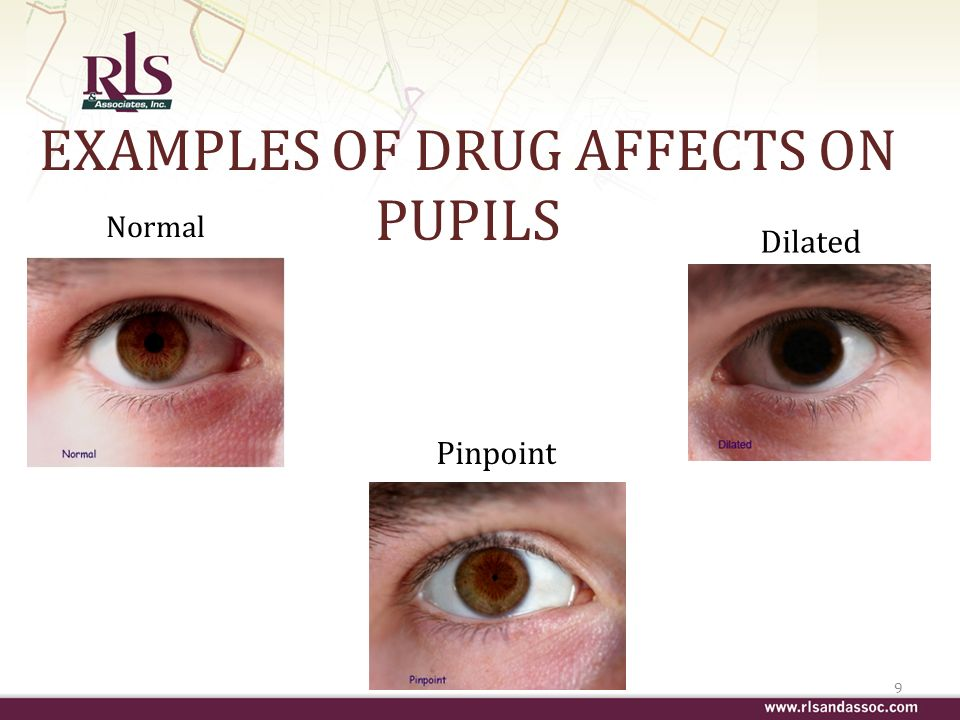 EXAMPLES OF DRUG AFFECTS ON PUPILS Normal 9 Dilated Pinpoint