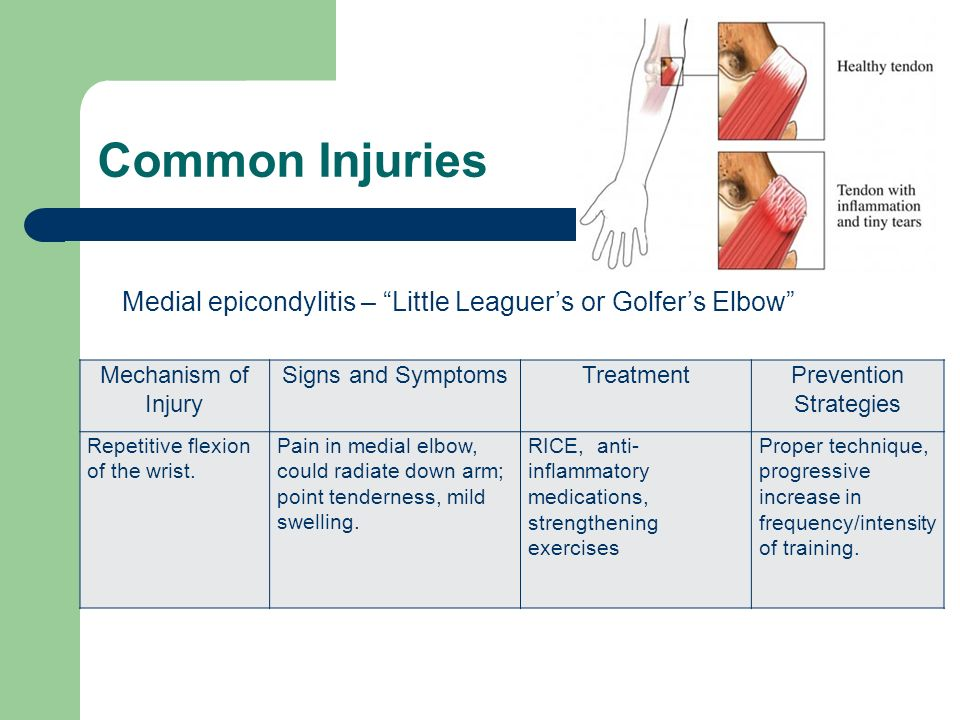 Common Injuries Mechanism of Injury Signs and SymptomsTreatmentPrevention Strategies Repetitive flexion of the wrist. Pain in medial elbow, could radi
