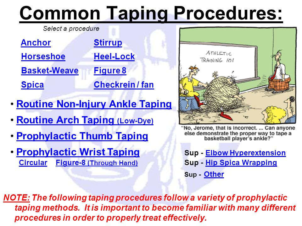 NOTE: The following taping procedures follow a variety of prophylactic taping methods. It is important to become familiar with many different procedur