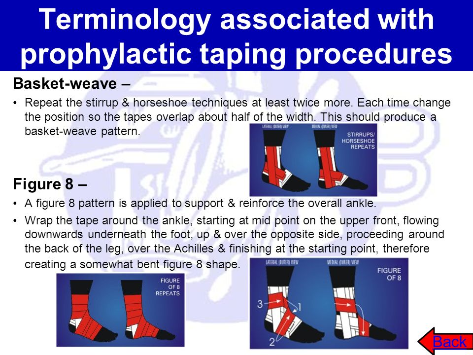 Terminology associated with prophylactic taping procedures Basket-weave – Repeat the stirrup & horseshoe techniques at least twice more. Each time cha