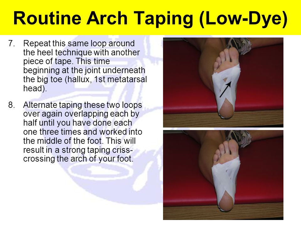 Routine Arch Taping (Low-Dye) 7.Repeat this same loop around the heel technique with another piece of tape. This time beginning at the joint underneat