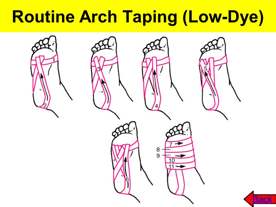 Routine Arch Taping (Low-Dye) Back