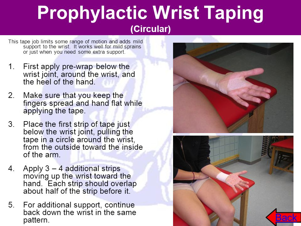 Prophylactic Wrist Taping (Circular) This tape job limits some range of motion and adds mild support to the wrist. It works well for mild sprains or j