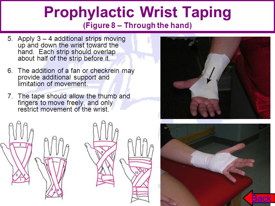 Prophylactic Wrist Taping (Figure 8 – Through the hand) 5.Apply 3 – 4 additional strips moving up and down the wrist toward the hand. Each strip shoul