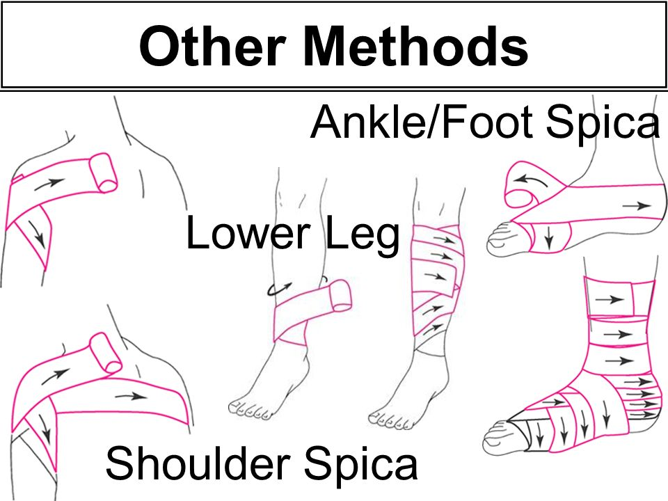 Shoulder Spica Lower Leg Ankle/Foot Spica Other Methods