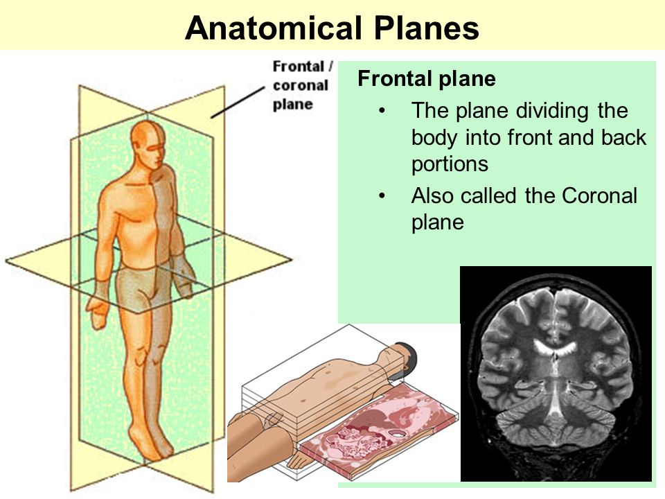 Anatomical Planes Transverse plane The horizontal plane dividing the body into upper and lower portions Also called the Horizontal plane