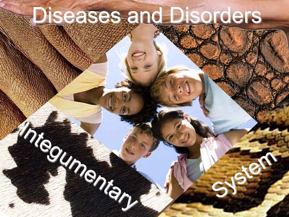 Diseases and Disorders Integumentary System