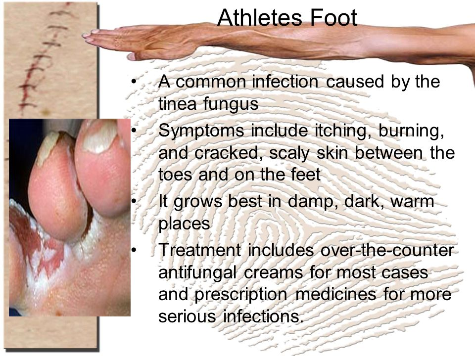 Athletes Foot A common infection caused by the tinea fungus Symptoms include itching, burning, and cracked, scaly skin between the toes and on the fee