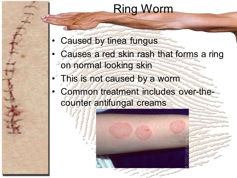 Ring Worm Caused by tinea fungus Causes a red skin rash that forms a ring on normal looking skin This is not caused by a worm Common treatment include
