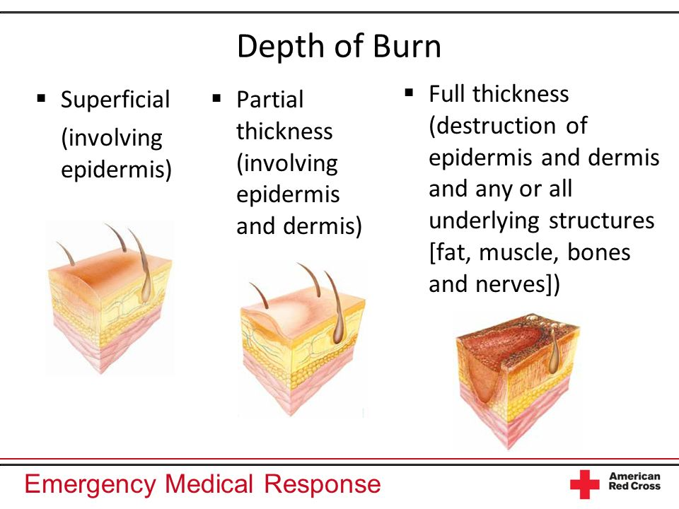 Emergency Medical Response Depth of Burn Superficial (involving epidermis) Partial thickness (involving epidermis and dermis) Full thickness (destruction of epidermis and dermis and any or all underlying structures [fat, muscle, bones and nerves])