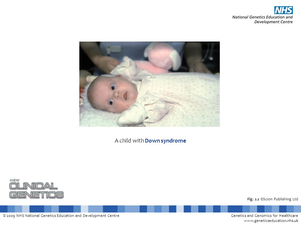 © 2009 NHS National Genetics Education and Development CentreGenetics and Genomics for Healthcare www.geneticseducation.nhs.uk Fig. 2.2 ©Scion Publish