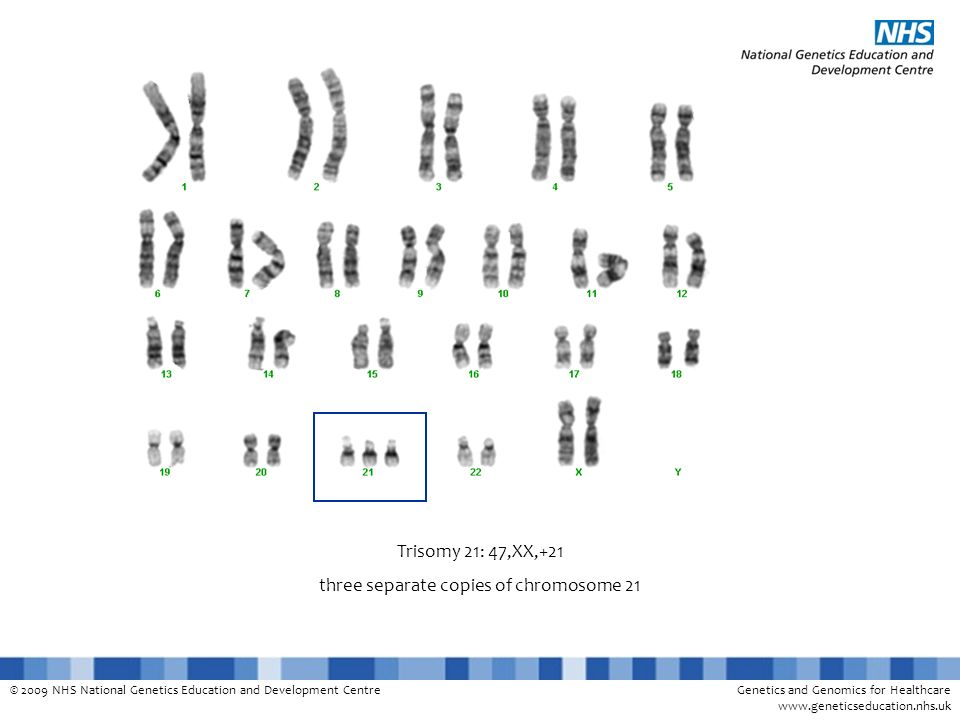 © 2009 NHS National Genetics Education and Development CentreGenetics and Genomics for Healthcare www.geneticseducation.nhs.uk Trisomy 21: 47,XX,+21 t