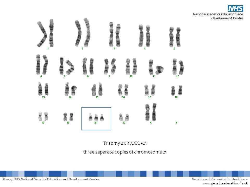 © 2009 NHS National Genetics Education and Development CentreGenetics and Genomics for Healthcare www.geneticseducation.nhs.uk Trisomy 21: 47,XX,+21 three separate copies of chromosome 21