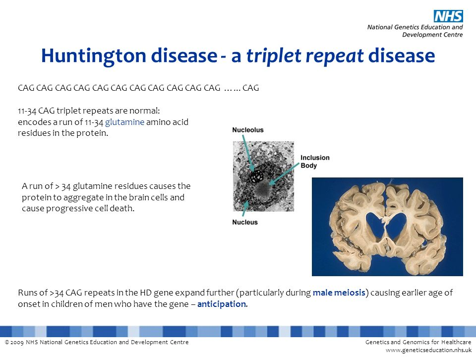 © 2009 NHS National Genetics Education and Development CentreGenetics and Genomics for Healthcare www.geneticseducation.nhs.uk Huntington disease - a