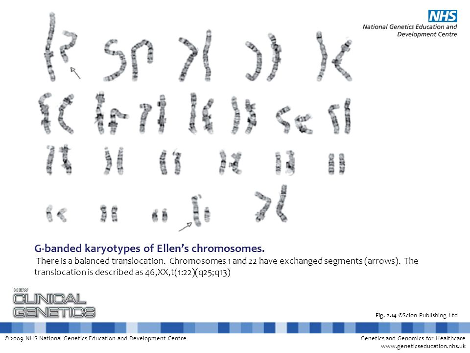 © 2009 NHS National Genetics Education and Development CentreGenetics and Genomics for Healthcare www.geneticseducation.nhs.uk Fig. 2.14 ©Scion Publis