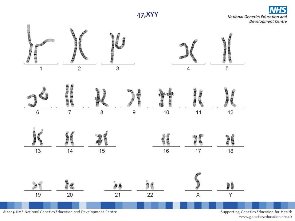 © 2009 NHS National Genetics Education and Development CentreSupporting Genetics Education for Health www.geneticseducation.nhs.uk 47,XYY