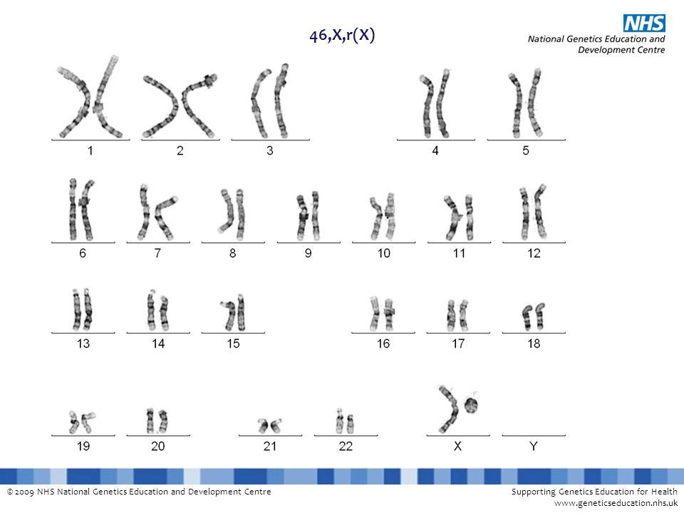 © 2009 NHS National Genetics Education and Development CentreSupporting Genetics Education for Health www.geneticseducation.nhs.uk 46,X,r(X)