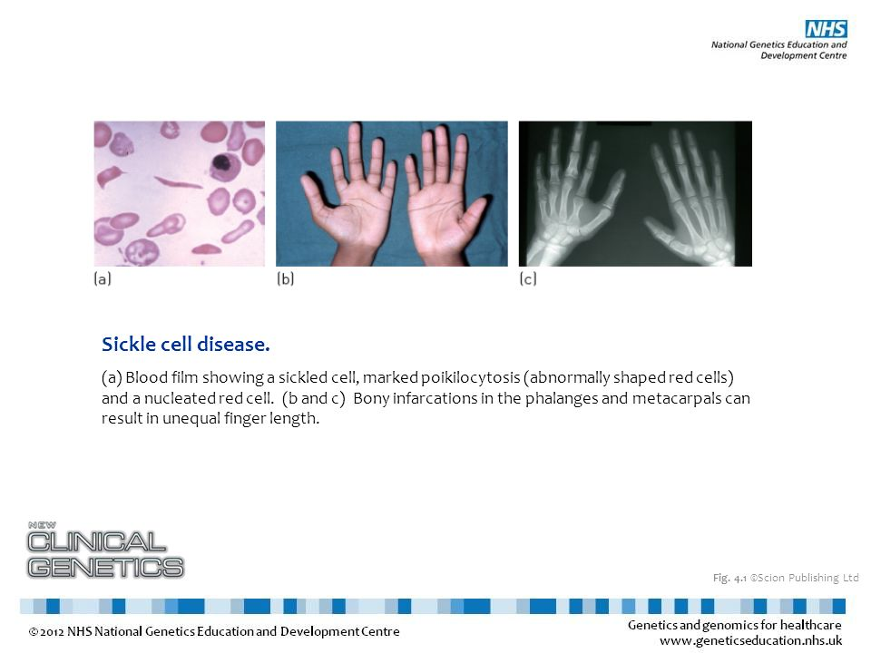 Fig. 4.1 ©Scion Publishing Ltd Sickle cell disease. (a) Blood film showing a sickled cell, marked poikilocytosis (abnormally shaped red cells) and a n