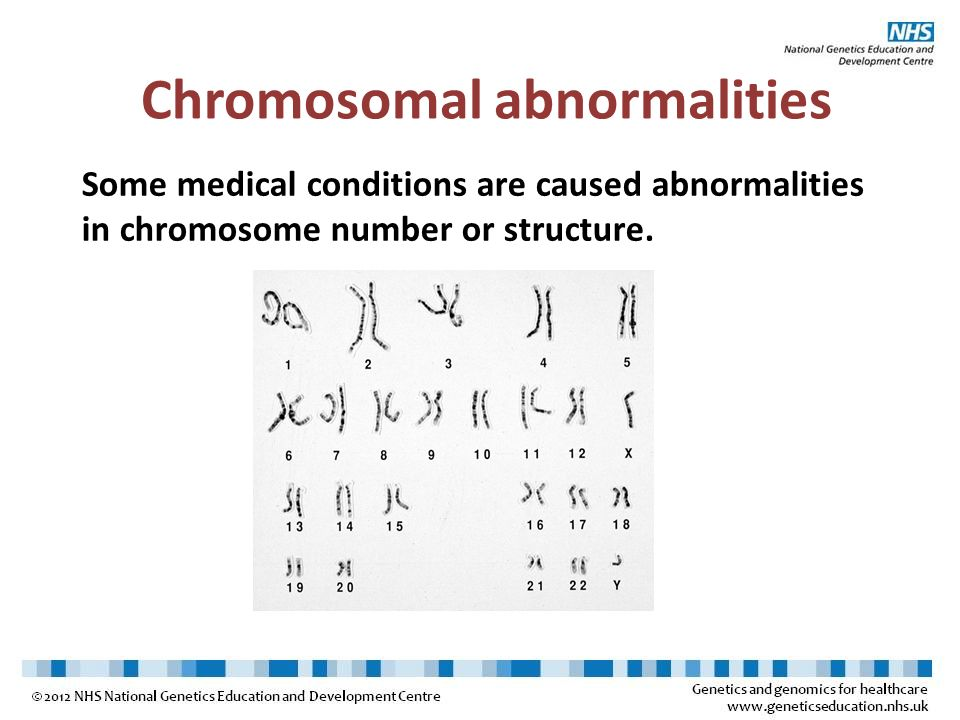 Some medical conditions are caused abnormalities in chromosome number or structure. Chromosomal abnormalities