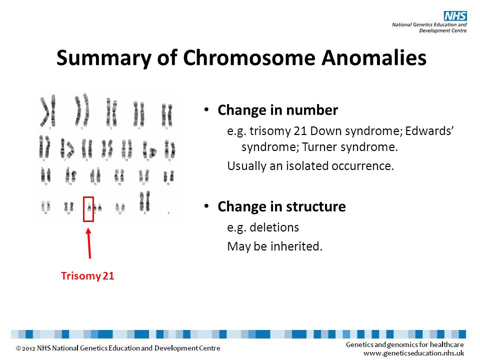 Summary of Chromosome Anomalies Change in number e.g. trisomy 21 Down syndrome; Edwards syndrome; Turner syndrome. Usually an isolated occurrence. Cha