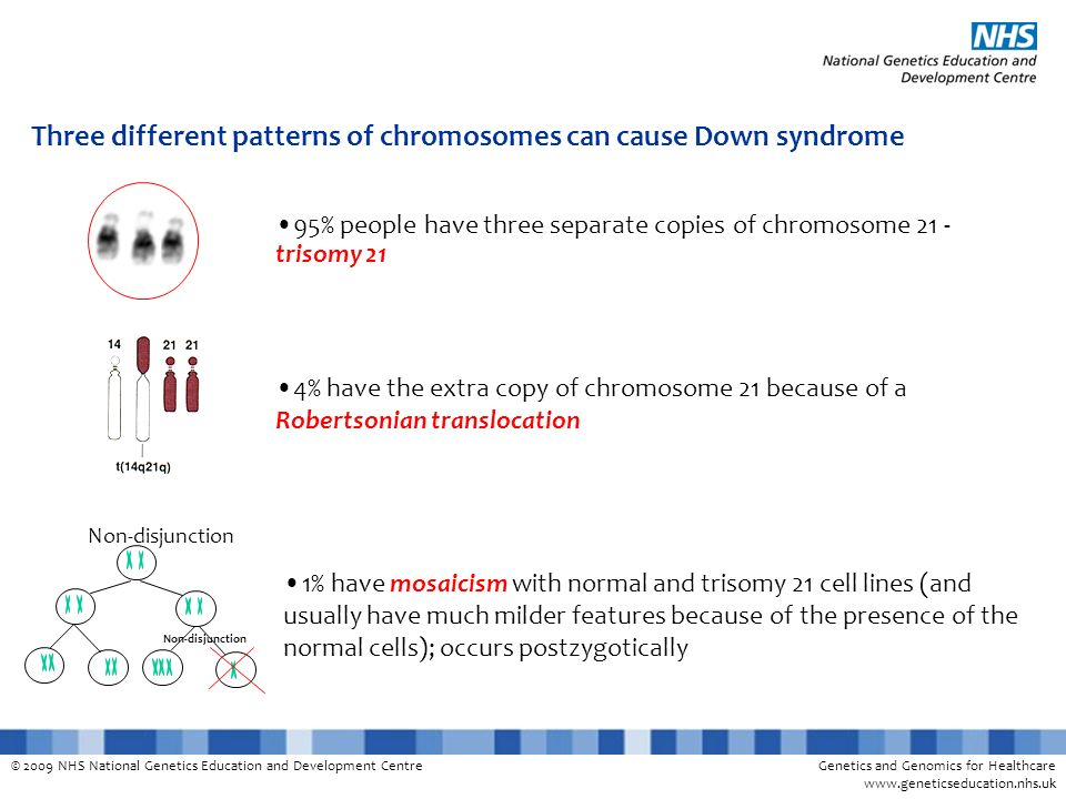 © 2009 NHS National Genetics Education and Development CentreGenetics and Genomics for Healthcare www.geneticseducation.nhs.uk Three different patterns of chromosomes can cause Down syndrome 1% have mosaicism with normal and trisomy 21 cell lines (and usually have much milder features because of the presence of the normal cells); occurs postzygotically Non-disjunction 95% people have three separate copies of chromosome 21 - trisomy 21 4% have the extra copy of chromosome 21 because of a Robertsonian translocation