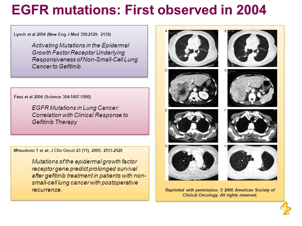 Reprinted with permission. © 2005 American Society of Clinical Oncology. All rights reserved. EGFR mutations: First observed in 2004 Lynch et al 2004