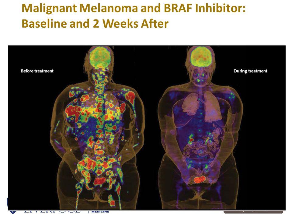 Malignant Melanoma and BRAF Inhibitor: Baseline and 2 Weeks After