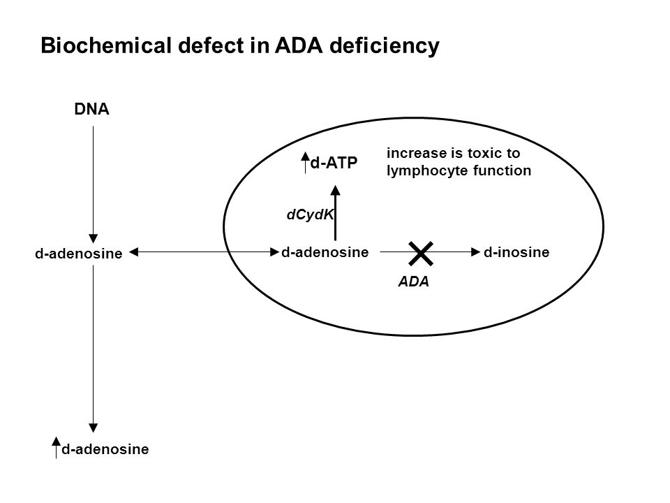 Biochemical defect in ADA deficiency DNA d-adenosine d-inosine d-adenosine d-ATP increase is toxic to lymphocyte function dCydK ADA