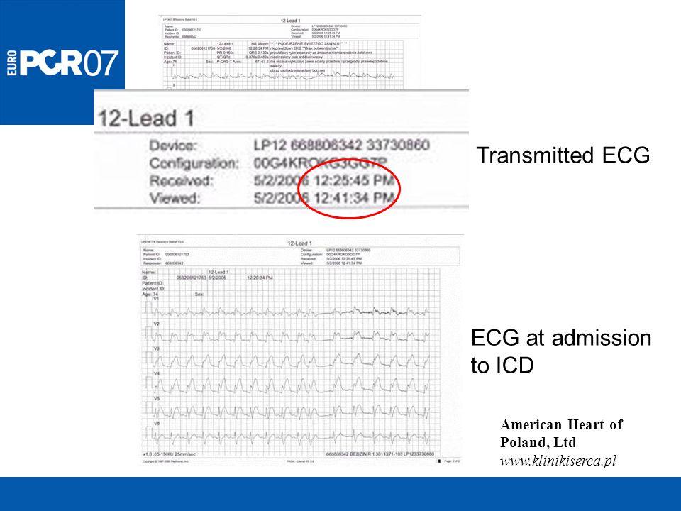 American Heart of Poland, Ltd www.klinikiserca.pl Transmitted ECG ECG at admission to ICD
