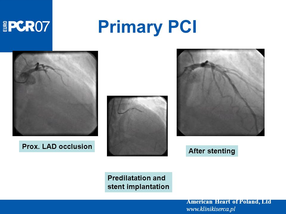 American Heart of Poland, Ltd www.klinikiserca.pl Prox. LAD occlusion Predilatation and stent implantation After stenting Primary PCI