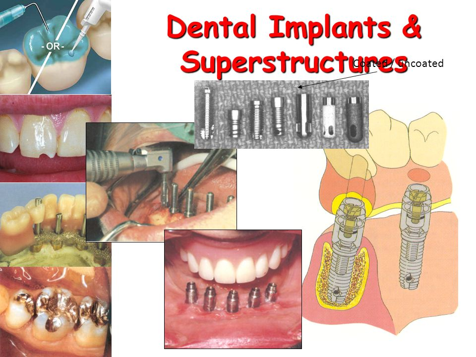 Dental Implants & Superstructures Coated / uncoated