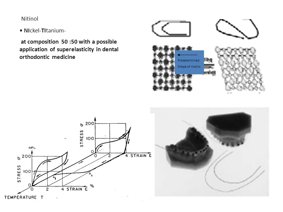 Nitinol NIckel-TItanium- at composition 50 :50 with a possible application of superelasticity in dental orthodontic medicine Predetermined Shape of ma